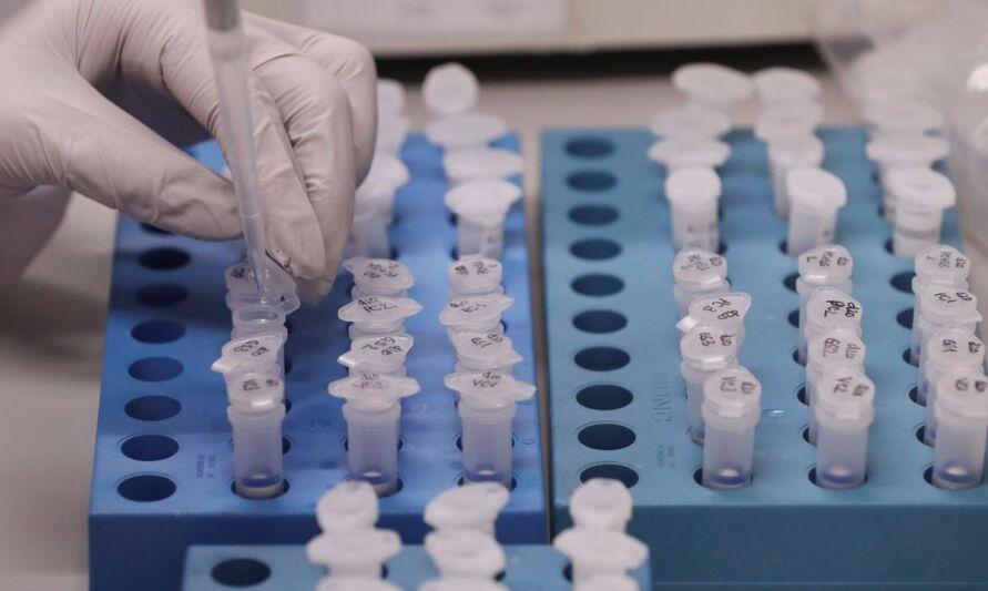 Mais 3 pacientes são confirmados na Grande Belém e Pará agora tem 78 casos de covid-19